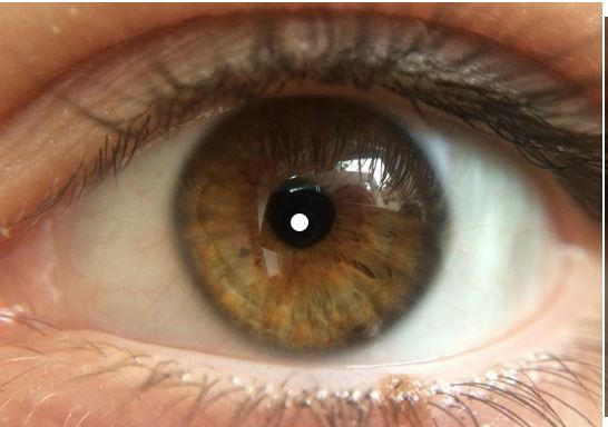 Olhos podem revelar doenças
